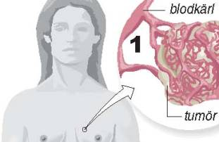 Sa_fungerar_Avastin_vid_brostcancer