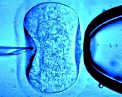 mikroinjektion250